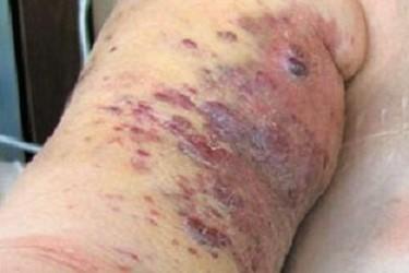 лимфангиосаркома симптомы