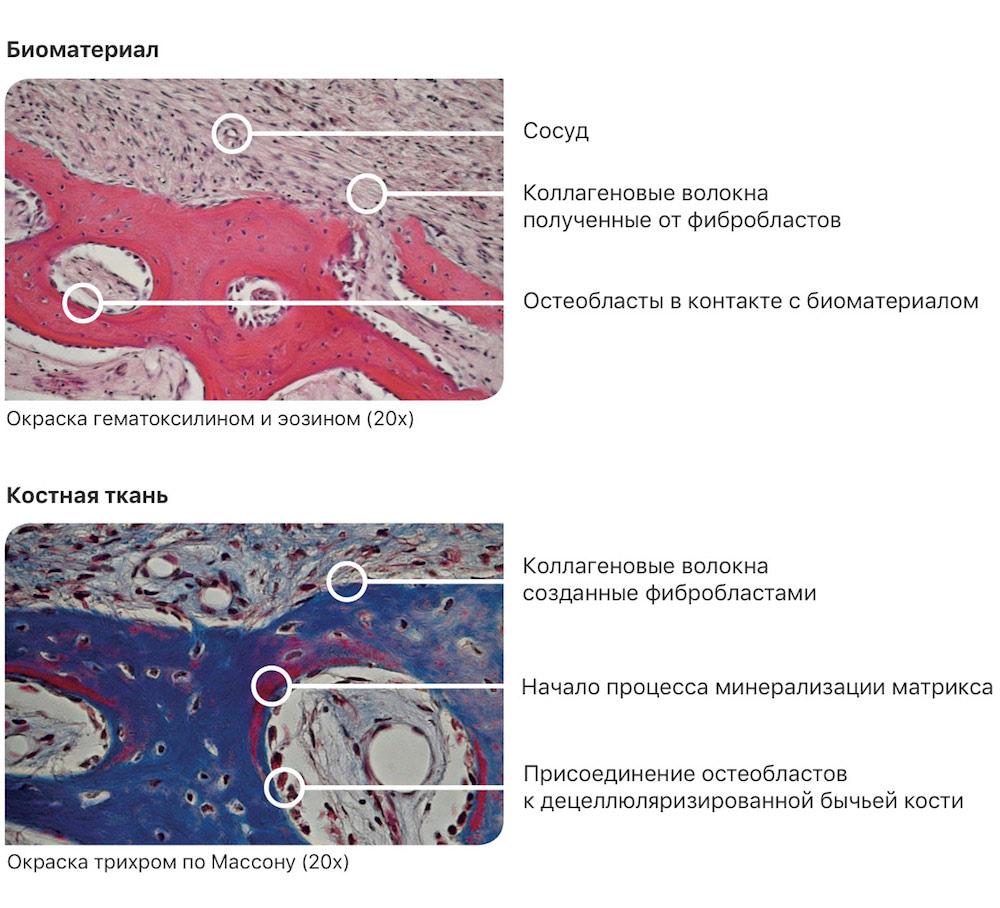 Результаты Гистологического анализа костного материала