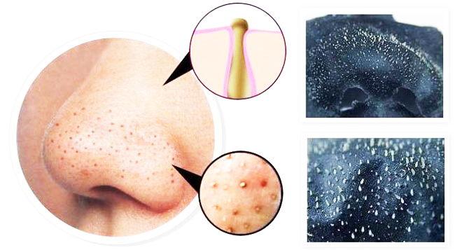черные точки на носу как избавиться?