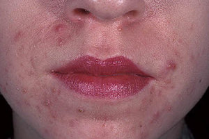 allergicheskii-dermatit-na-lice.jpg