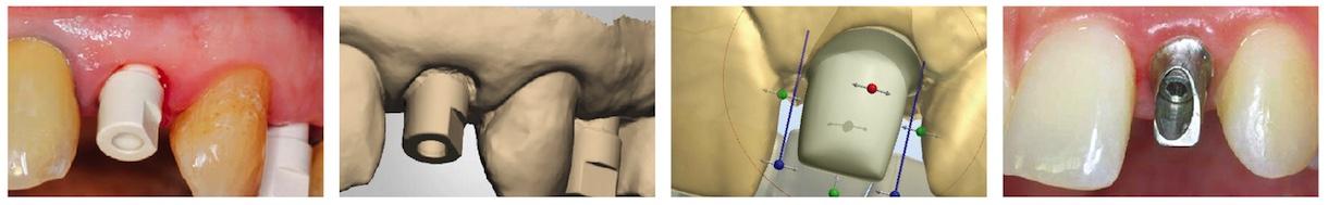 Скан-Абатмент NeoBiotech   Oral Scan Body AllDent