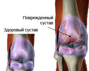 1307747878_osteoartroz.jpg