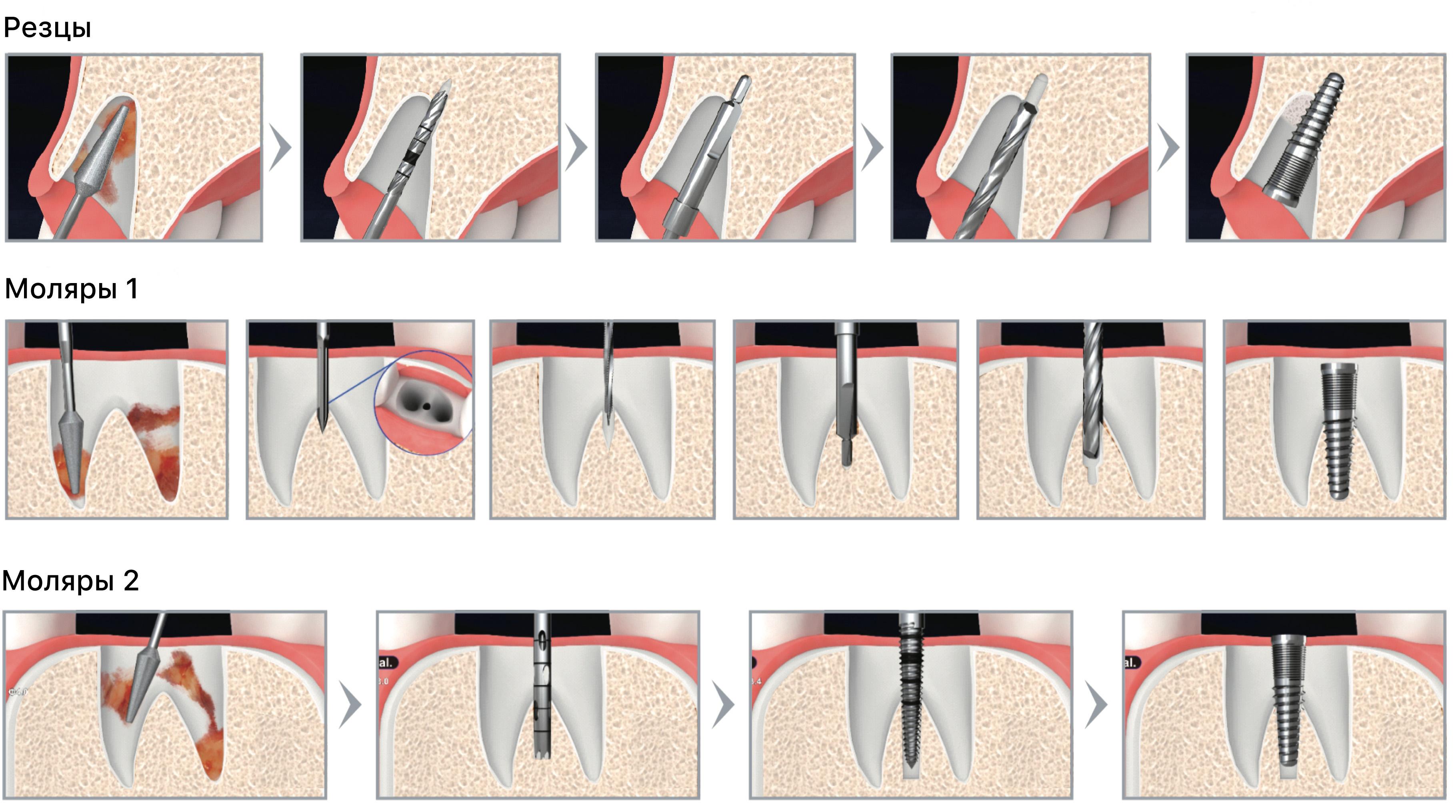 Хирургический набор тримеров Dental Studio