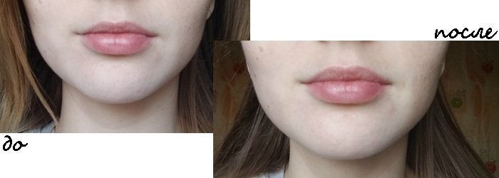 Фотообзор на моделирующий филлер для губ Histomer
