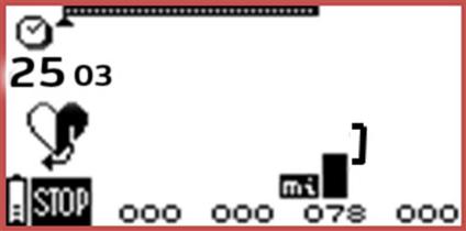 Экран электростимулятора Compex