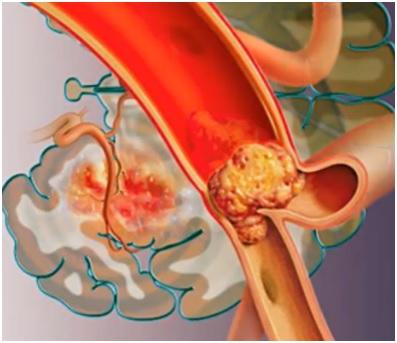 На изображении - закупорка вены тромбом