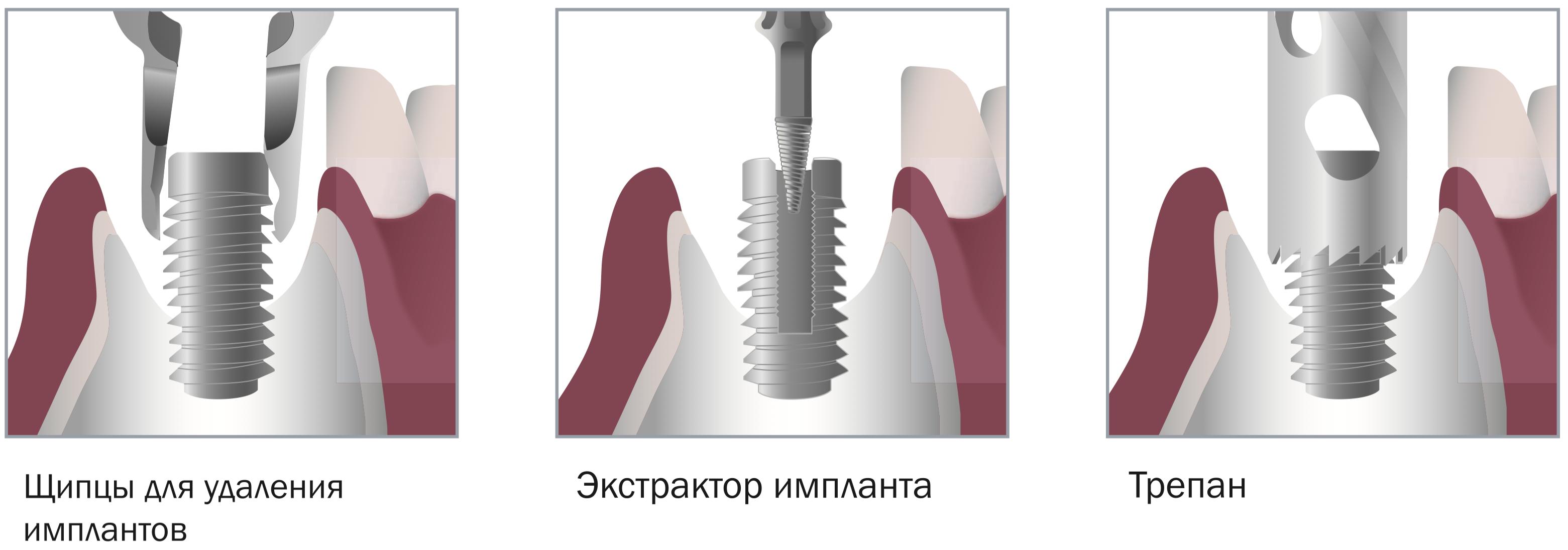 Техника применения Implant Remover Kit