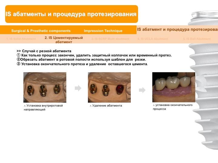 Neobiotech_Руководство_по_протезированию_35.jpg