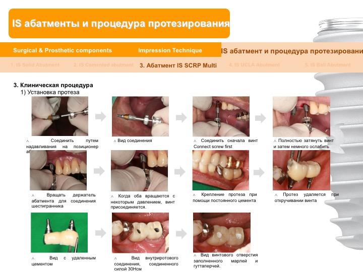 Neobiotech_Руководство_по_протезированию_46.jpg