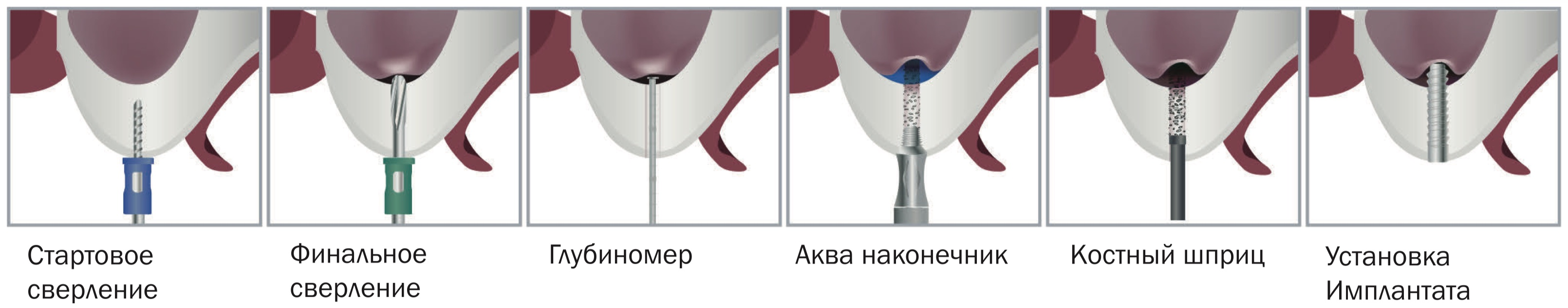 Техника применения Dental Studio Sinus Crestal Approach