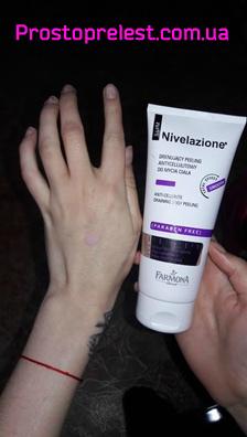 Fotoobzor Pilinga antitsellyulitnogo s drenazhnym effektom ot Nivelazione
