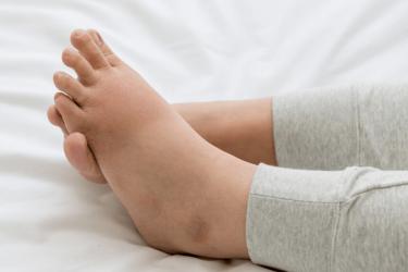 отёк ног после анестезии