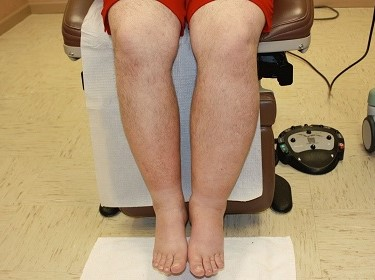 Лимфостаз ног симптомы