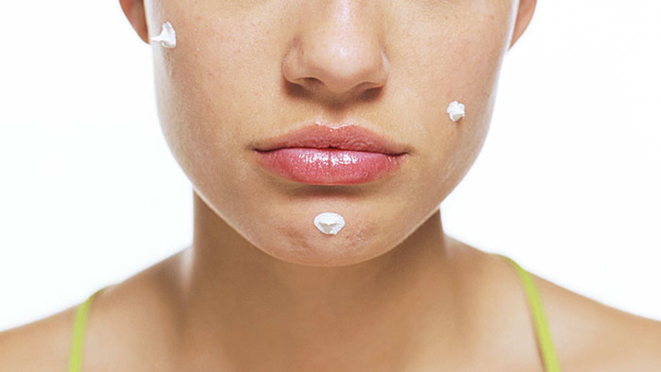 adult-acne-cures-stock-today-160212-tease_7997ee0de96317bd29183ae2f62c9ff8.jpg