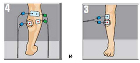 Электростимуляция Compex после перелома большеберцовой кости