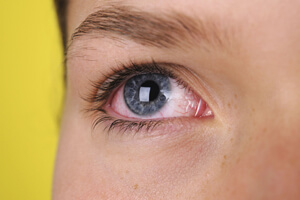 Как подобрать капли от покраснения глаз, фото
