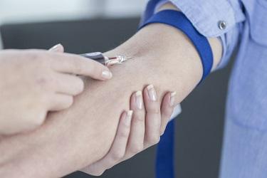Лимфостаз руки после мастэктомии