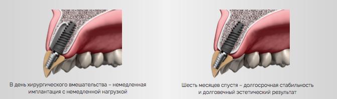 КЛИНИЧЕСКИЕ_ПРЕИМУЩЕСТВА_АЛЬФАБИО