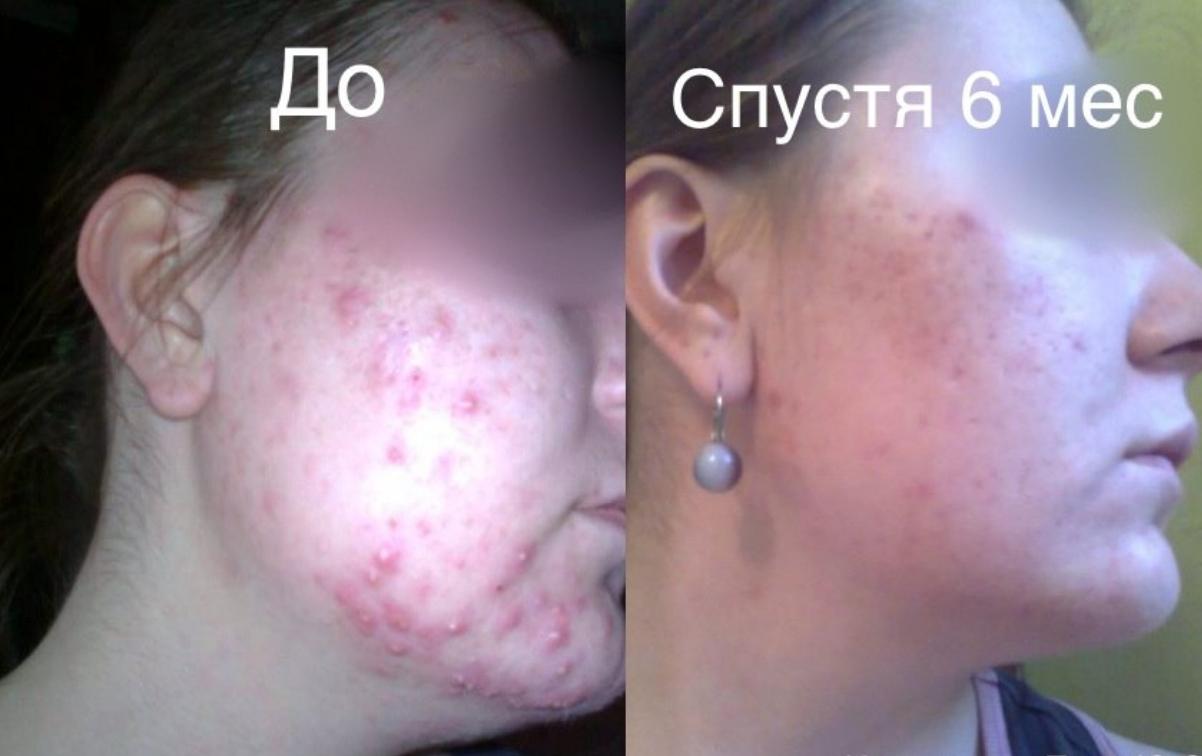 Результаты лечения акне