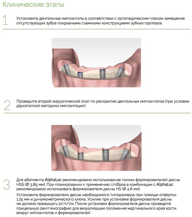 Протезирование_AlphaLoc_Ортопедический_протокол._Клинические_этапы_1.jpg