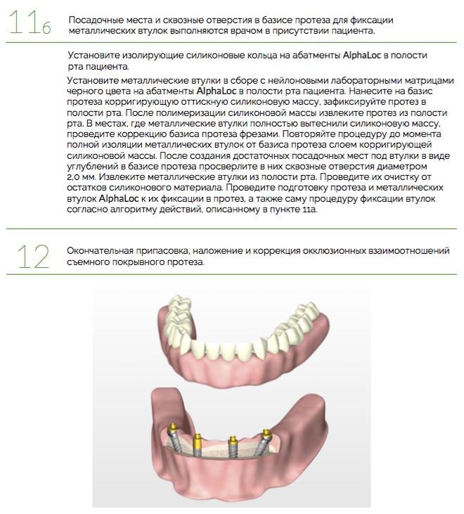 Протезирование_AlphaLoc_Ортопедический_протокол._Клинические_этапы_8.jpg