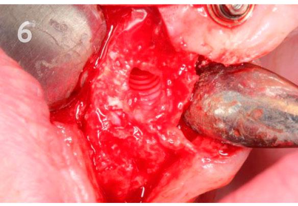 Выкрутка-импланта-набором-FR-6.jpg