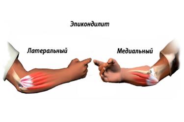 Латеральный эпикондилит локтевого сустава