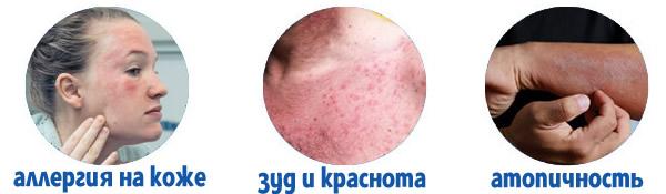 Лосьон Ламелодерм Just при аллергии на коже и зуде