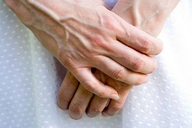 бывает ли варикоз рук