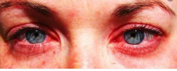 аллергия при наращивании ресниц
