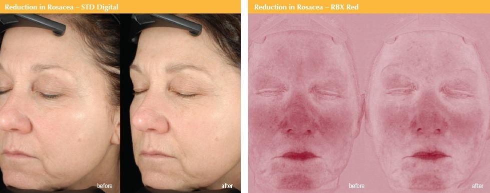 Idebenone-Complex-Clinical-Study-Rosacea2.jpg