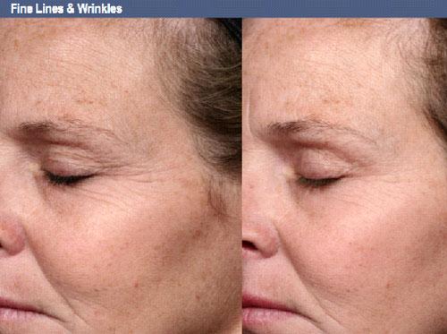 Priori-Peels-Fine-Lines-Wrinkles.jpg