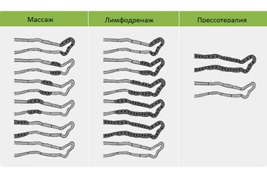 Различия массажа, лимфодренажа и прессотерапии