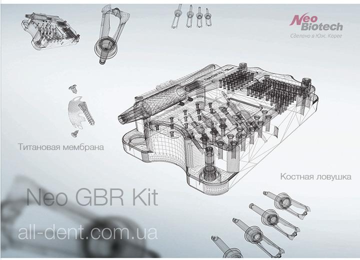 NeoBiotech Набор GBR Kit alldent