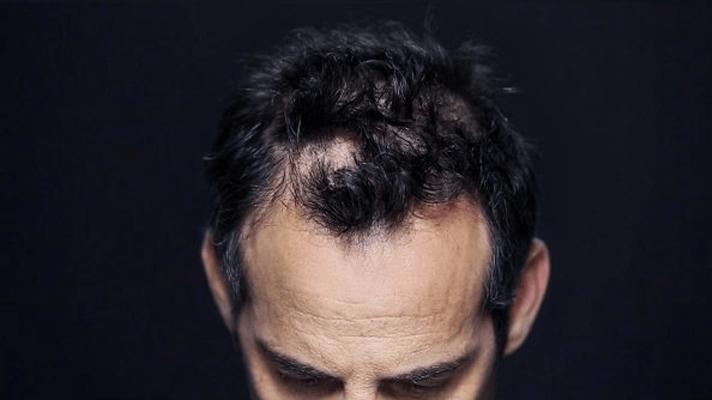 Загуститель волос купить