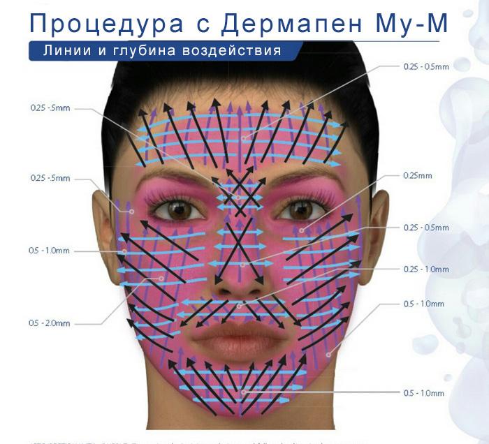 dermapen-face.jpg