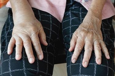 отёк руки лечение