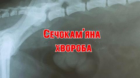 Сечокам'яна хвороба - діагностика та лікування