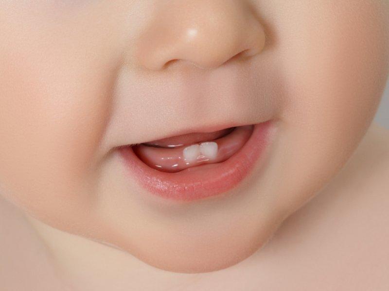 Режутся зубки - симптомы