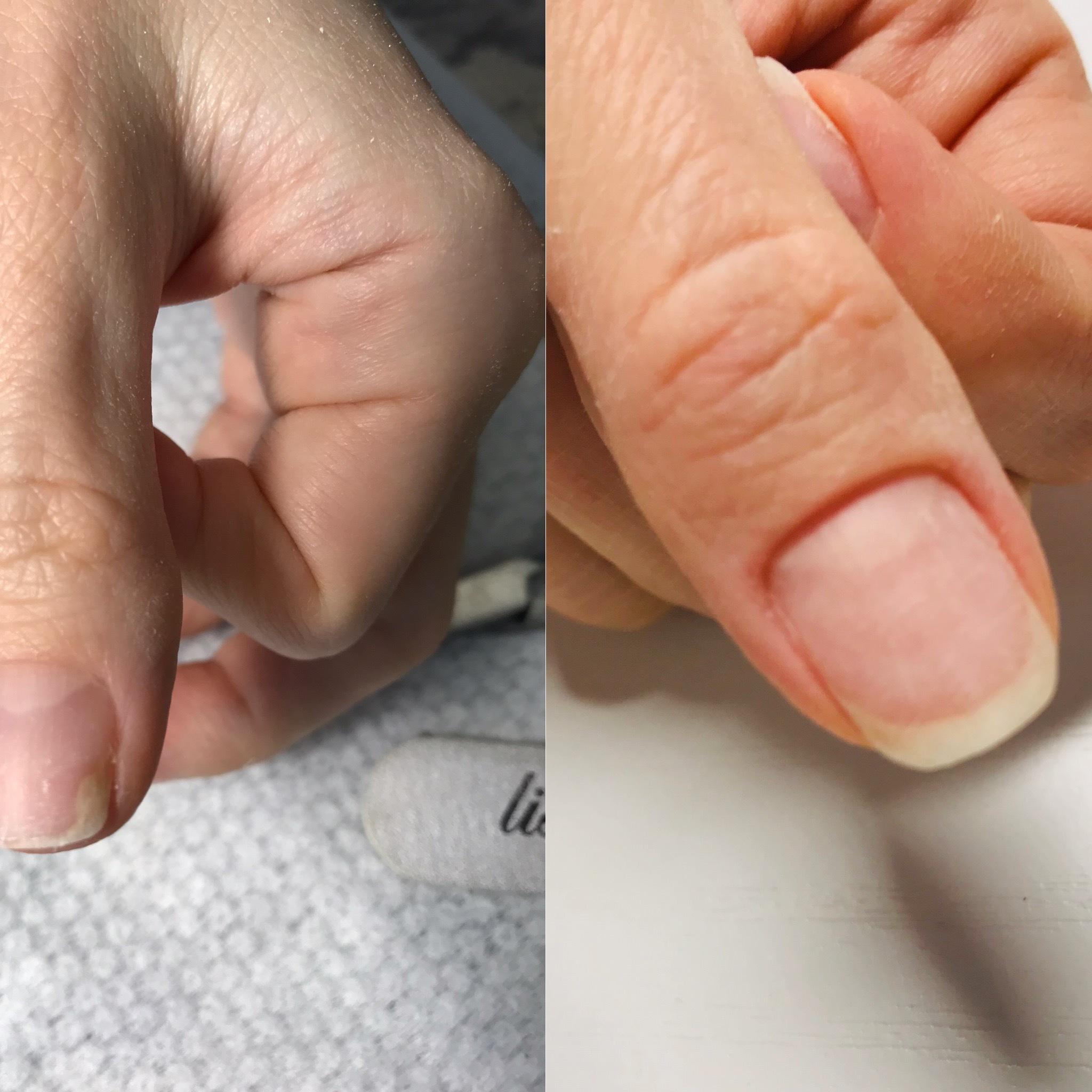 Онихолизис - препараты для лечения ногтей