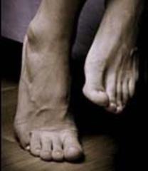 синдром беспокойных ног массажер