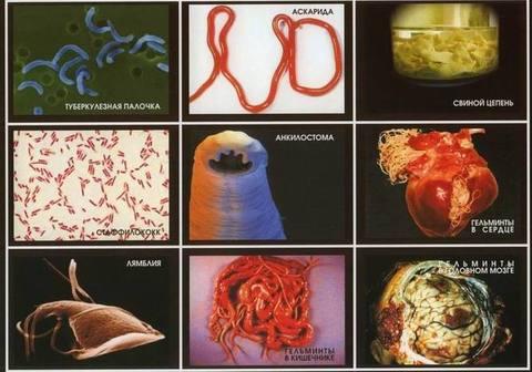 Паразиты -  грибки,  глисты, плесень, бактерии. (обновленная версия).