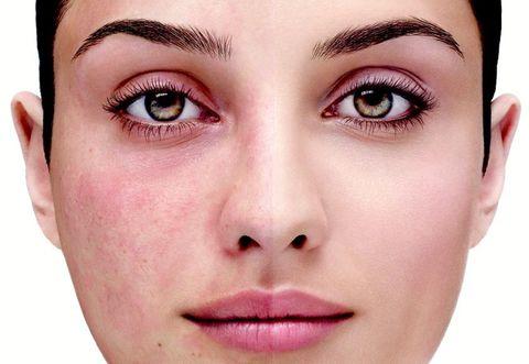 Как ухаживать за кожей с куперозом? У меня чувствительная, склонная к покраснениям кожа. Посоветуйте уход.