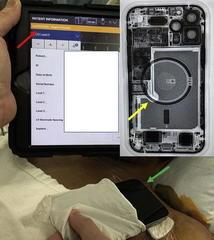 Магнитная решетка iPhone 12 может нарушить работу имплантируемых медицинских устройств