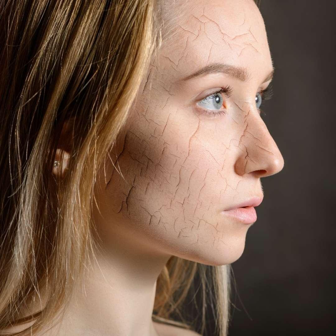 Сухая кожа лица - вредные привычки плохо отражаются на здоровье кожи.
