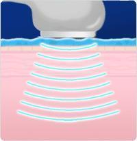 Терапевтический ультразвук неэффективен в лечении трофической язвы