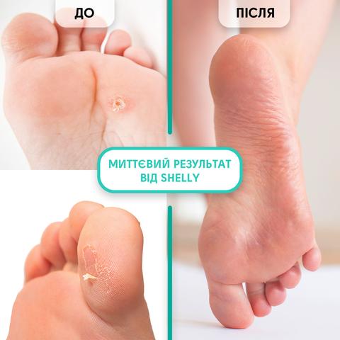 Гель-кератолітик для локального застосування М'яке лезо Shelly 100 мл + спа-шкарпетки для педикюру + пемза В ПОДАРУНОК! (2)
