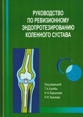 Руководство по ревизионному эндопротезированию коленного сустава