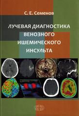 Лучевая диагностика венозного ишемического инсульта