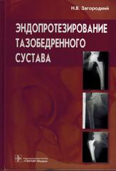 Эндопротезирование тазобедренного сустава. Основы и практика